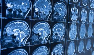 Visualizzazione cerebrale